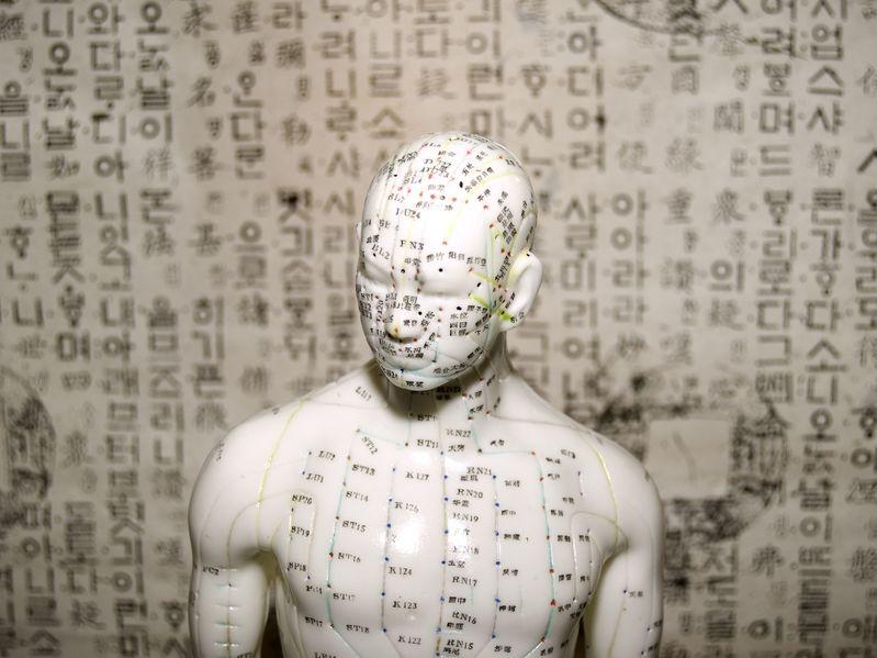 acupuntura en madrid