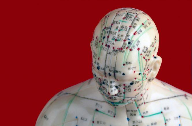 La acupuntura que mejor funciona